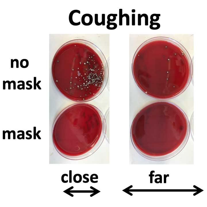 TSA BLood Agar plates comparing results from coughing with and without a mask.